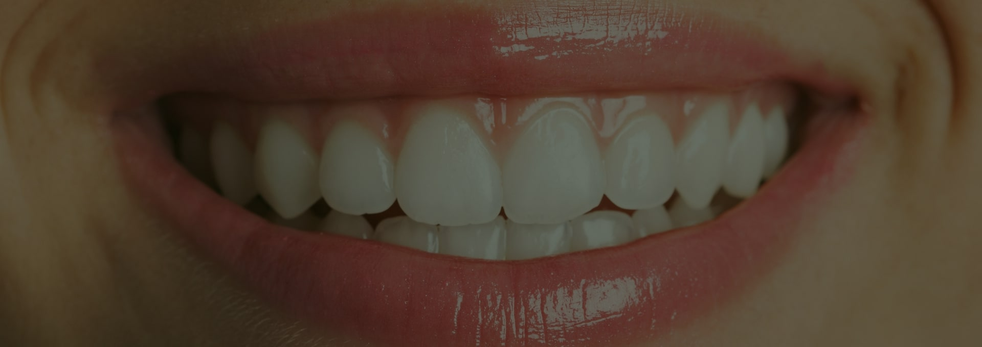 Clínica Odontologia Estética em Brasília - StudioUno Odontologia