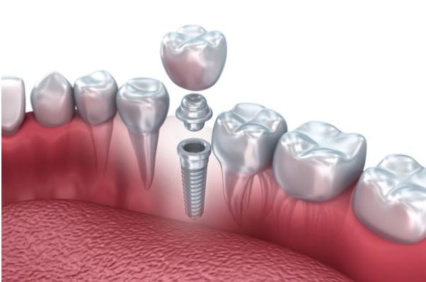 Exemplo de como é feito um Implante