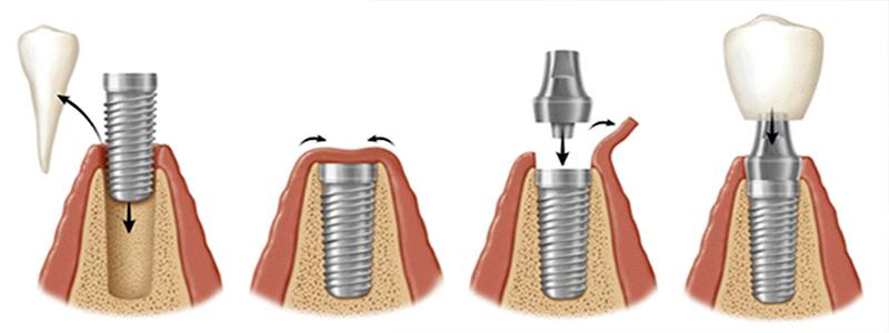 Osseointegração - Implante