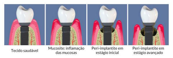 Estágios da Peri-implantite