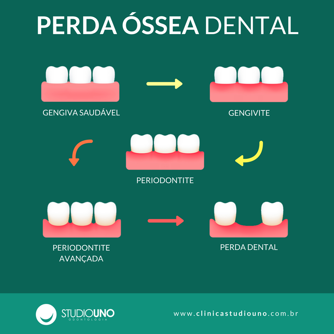 Processo de perda óssea dental