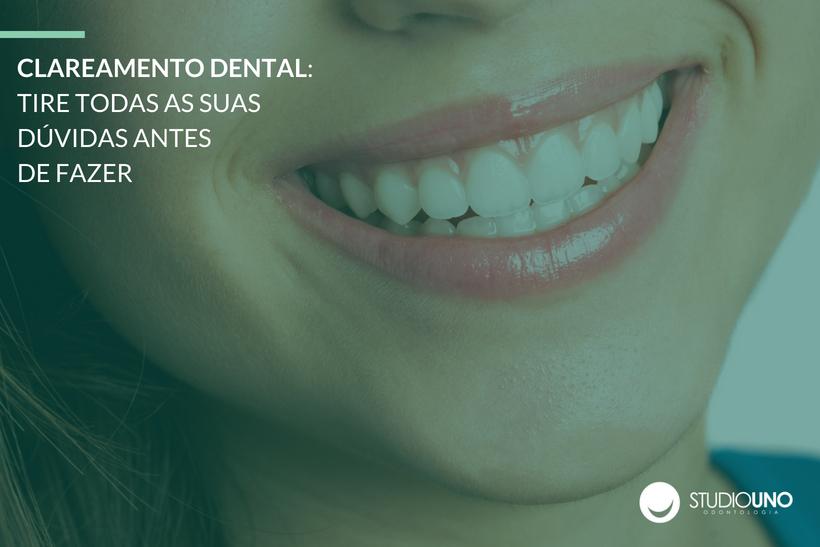 Clareamento Dental Tire Duvidas Antes De Fazer Studiouno Odontologia