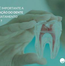 Por que é importante a restauração do dente após o tratamento de canal ?