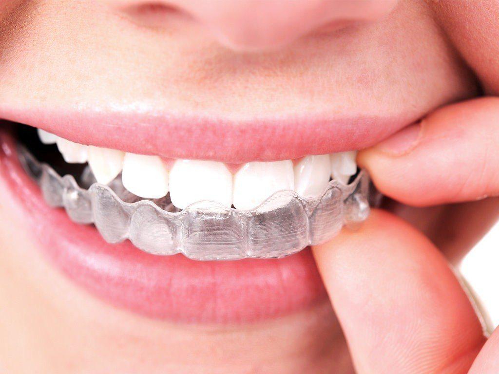 Invisalign Aparelho Invisível - Ortodontia - Clínica Odontológica StudoUno - Brasília-DF