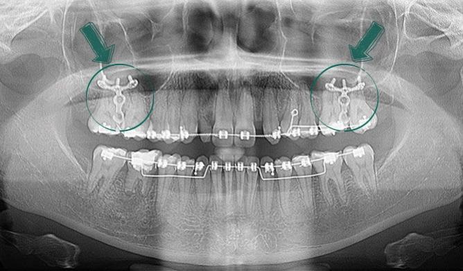 Miniplaca - Ortodontia - Clínica Odontológica StudoUn