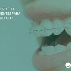 Pode ser preciso extrair dentes para usar aparelho?