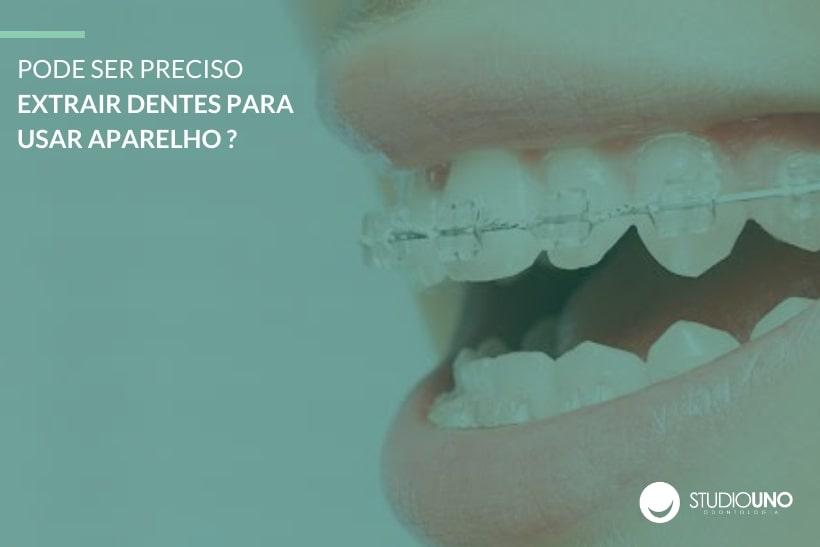 Extração de dente no tratamento ortodôntico - StudioUno Odontologia - Brasília/DF