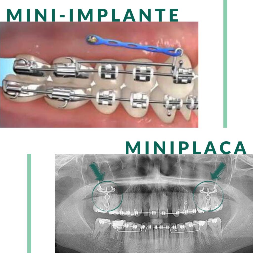 Mini-implante e miniplaca no tratamento ortodôntico - StudioUno Odontologia - Brasília/DF