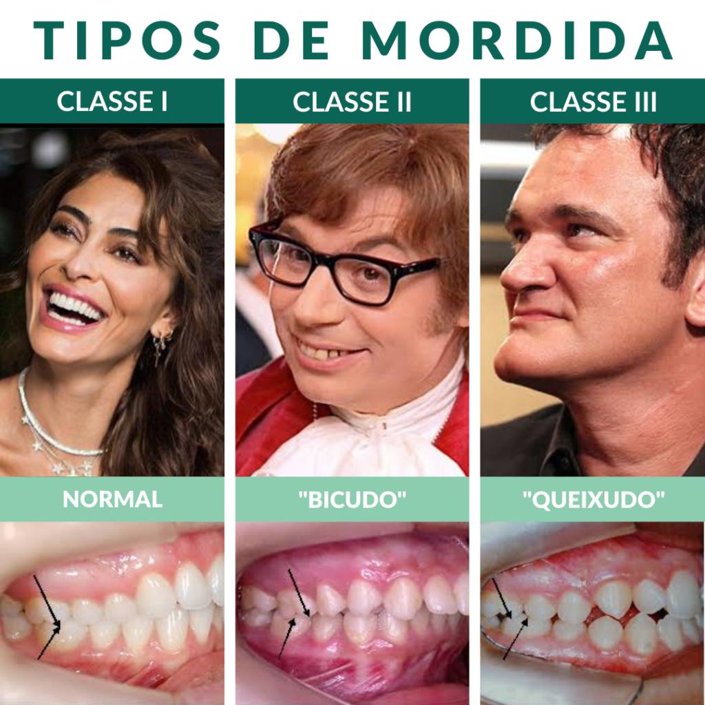 Tipos de mordida: Classe I, Classe II e Classe III - StudioUno Odontologia - Brasília/DF