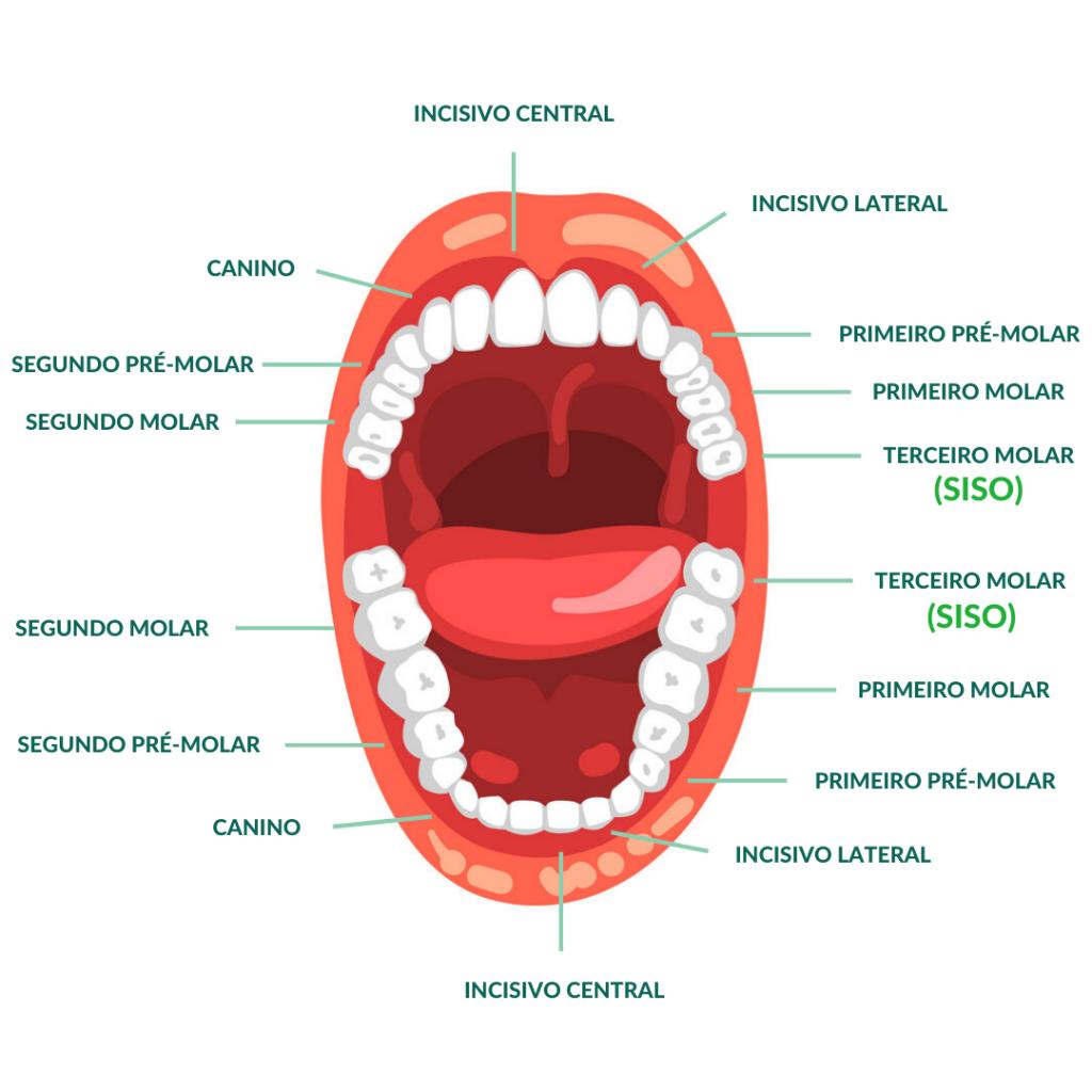 Dentes Siso na Arcada Dentária - Clínica Odontológica StudioUno - Brasília-DF