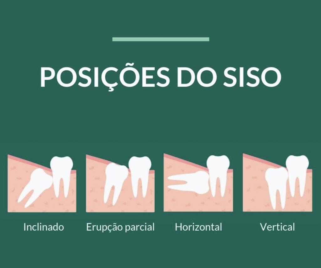 Posições do siso - StudioUno Odontologia - Brasília/DF