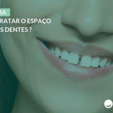 Diastema: como tratar o espaço entre os dentes?