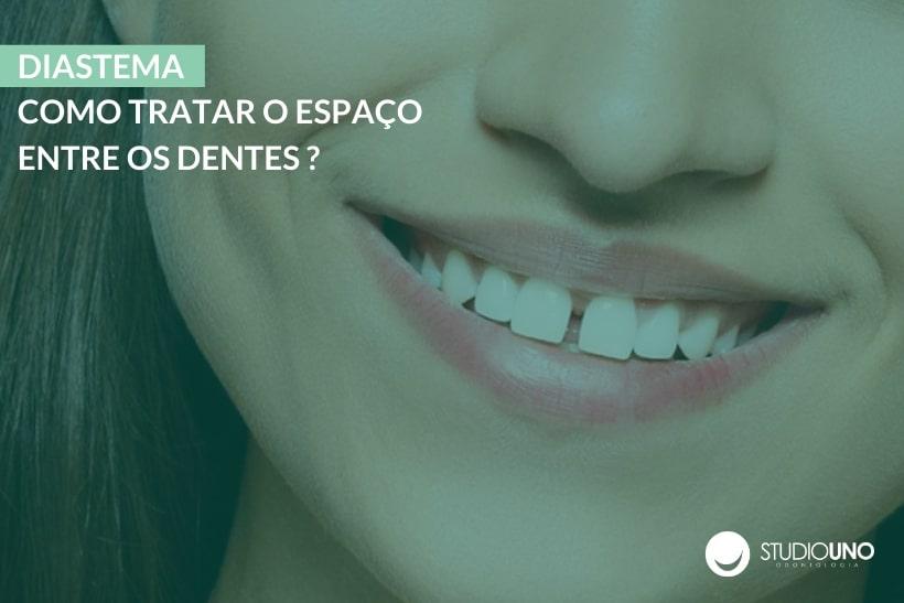 Diastema: como tratar o espaço entre os dentes? - StudioUno Odontologia - Brasília/DF