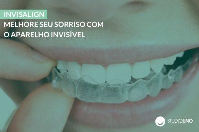 Invisalign: Melhore seu sorriso com o aparelho invisível - StudioUno Odontologia - Brasília/DF