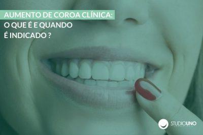 Aumento de coroa clínica - StudioUno Odontologia Brasília DF