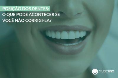 Corrigir a posição dos dentes | StudioUno Odontologia Brasília DF