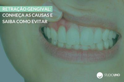 Retração gengival: Causas e como Evitar e Tratar | StudioUno Odontologia Brasília DF